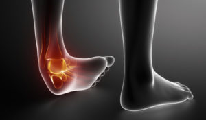 Physioverbier-ankle-cheville-sprain