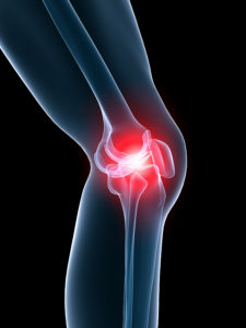 Physioverbier-meniscus-knee-genou